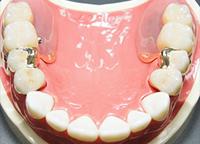 アタッチメント義歯