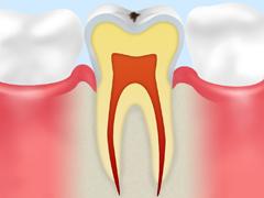 ごく初期の虫歯
