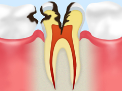 神経に達した虫歯