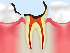 歯根に達した虫歯