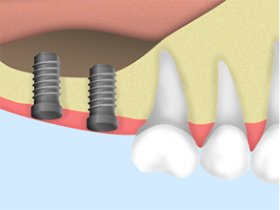 上顎の骨が不足している場合の治療 サイナスリフト