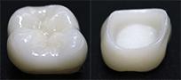 ジルコニアLAVA(単色)人工ダイアモンド・セラミック