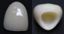 ジルコニアLAVA(グラデーション)人工ダイアモンド・セラミック